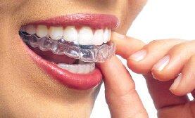 Invisalign Proud Providers   Joy Dental Pines, Pembroke Pines,FL Dentist