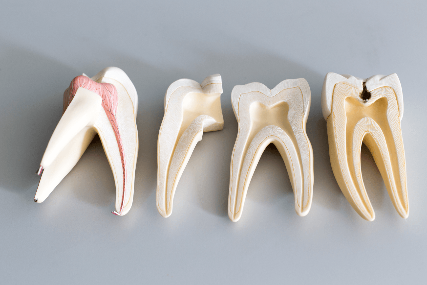 Why Do I Need a Root Canal Treatment If My Tooth Doesn't Hurt?